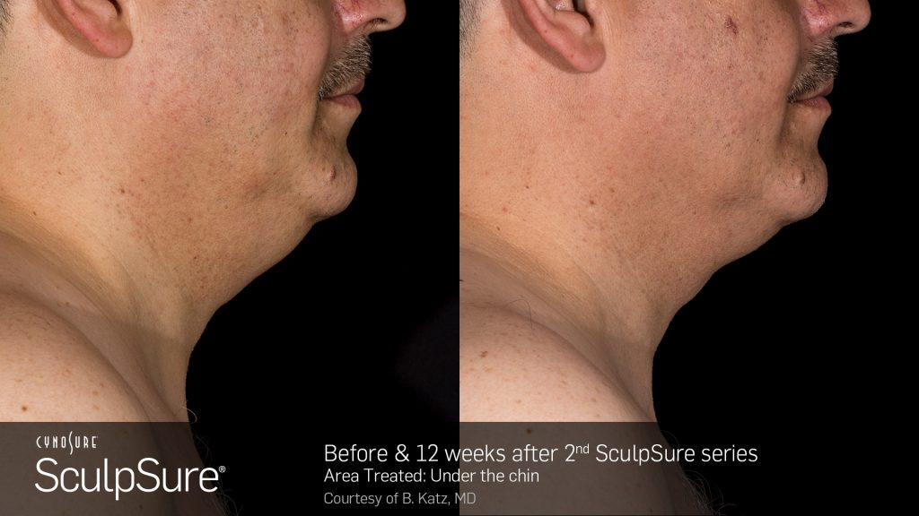 Before and after SculpSure submental photos