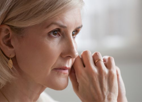 Older woman with aging skin